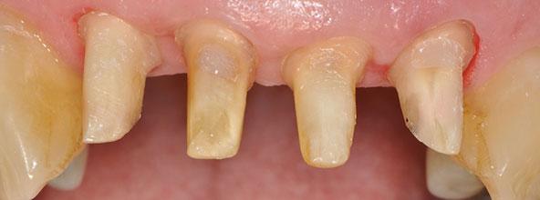 La Préparation des Dents Vivantes