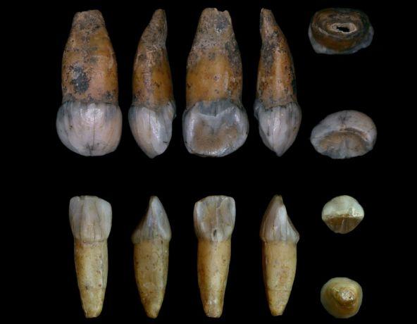 La Plaque Dentaire Préhistorique