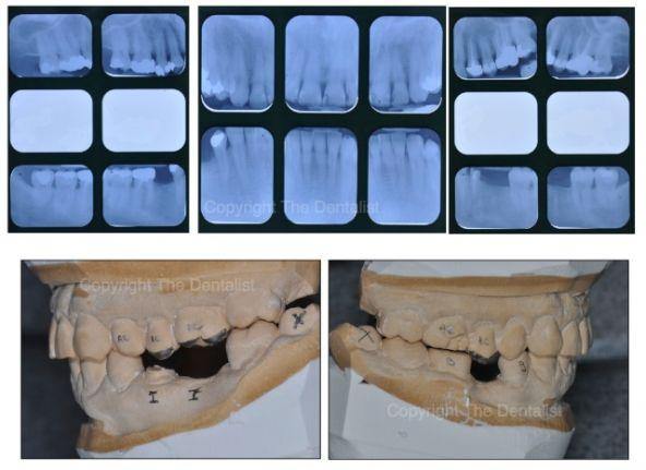 5 Raisons de se Mettre à la Photographie Dentaire