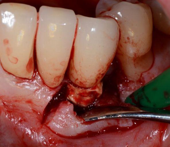 La Cause des Péri-implantites