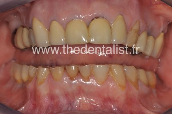 Les Usures Dentaires
