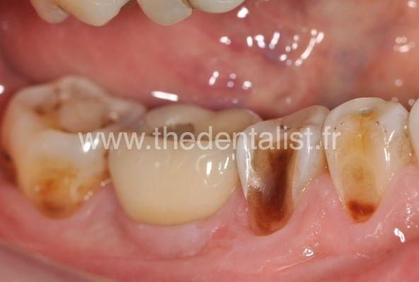 Apprenez à Reconnaitre l'Erosion Dentaire