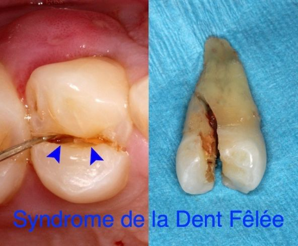 steroids after dental implants
