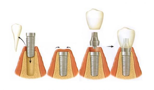 Comment Faire Accepter les Implants?