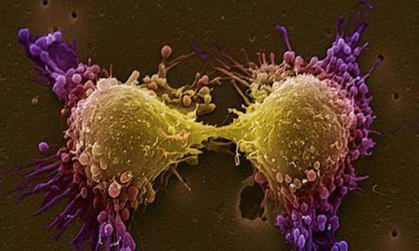 Cancer et Soins Bucco-Dentaires