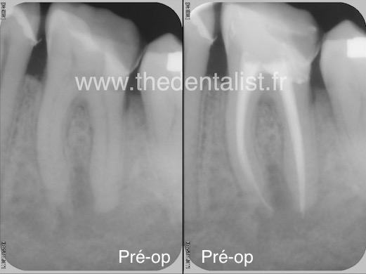 Tendinite endodontique