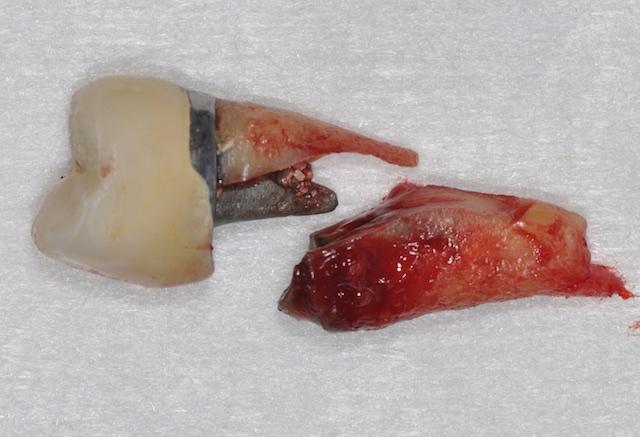 complication dentaire