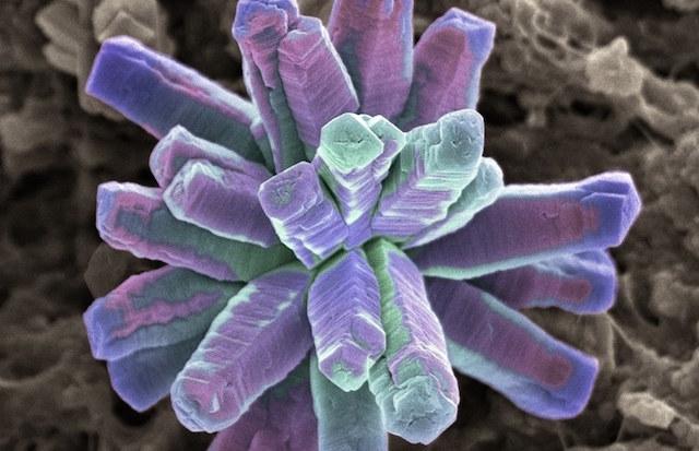 Bacteria-Dental-Hygeine