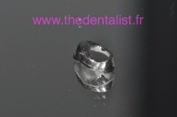 Les Cupules de Réduction en Prothèse Fixée