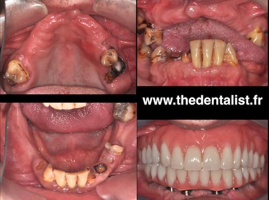 Réhabilitation orale et toxicomanies