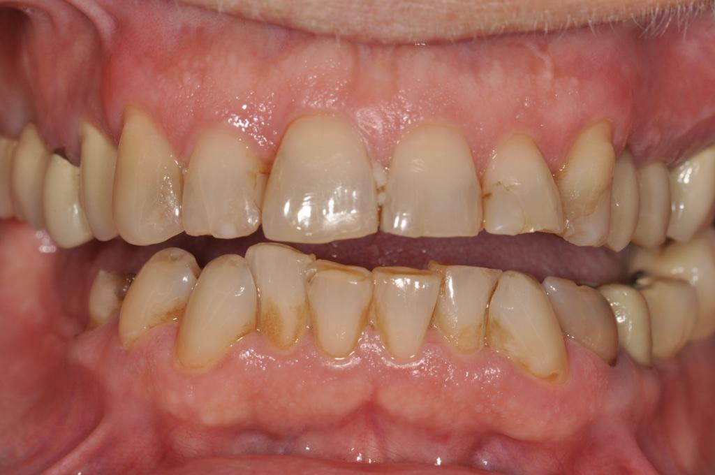 Qu'est ce qu'un Cas Clinique Dentaire Complexe?